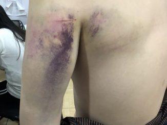 台灣男子菲律賓博彩公司求職 遭綁2天沒食物喝尿存活
